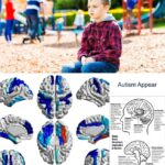 At What Age Does Autism Appear?
